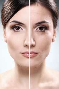 womans-face-wrinkles-before-after